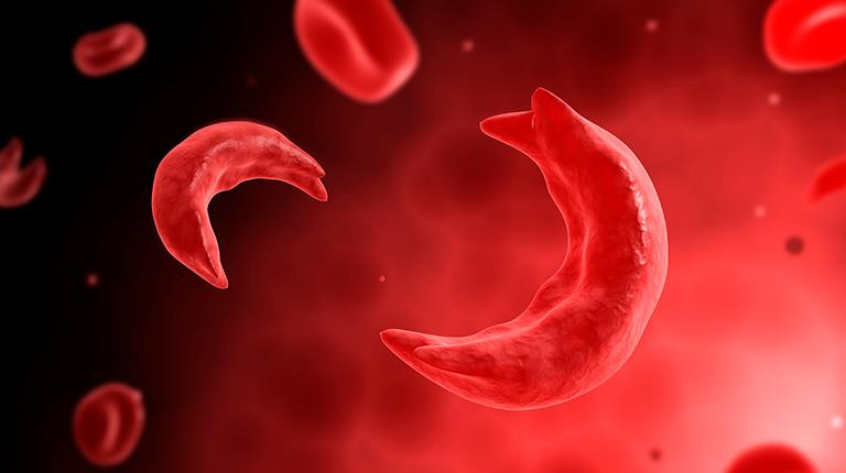 Microscopic view of sickle shaped blood cell