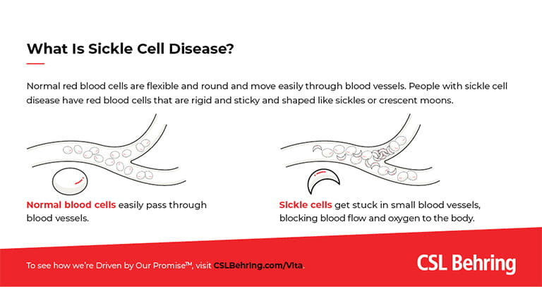 CSL Behring infographic - What is Sickle Cell Disease?