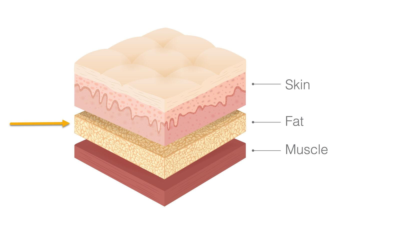 Cross section showing three layers: skin, fat and muscle