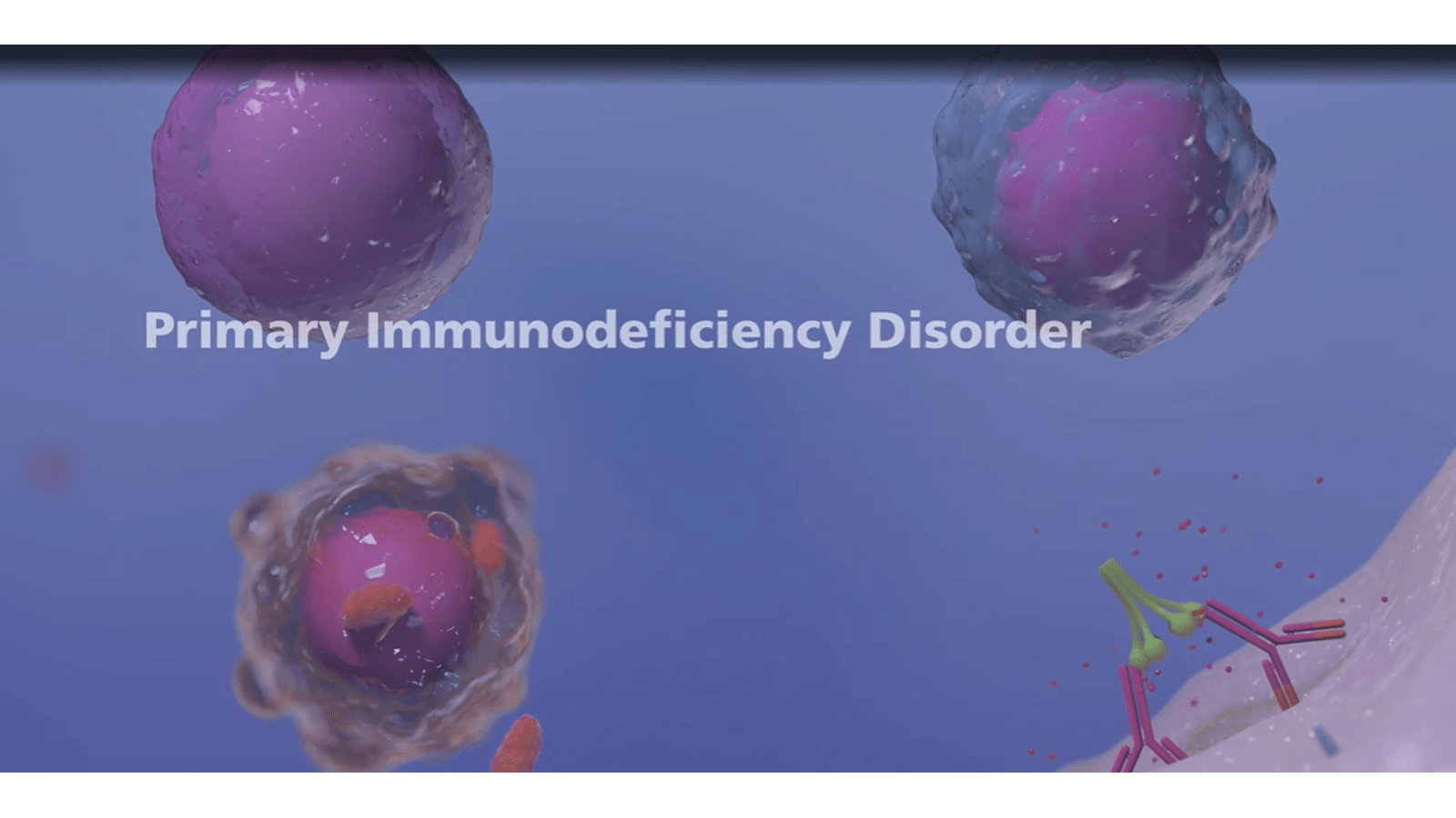 Microscopic view of primary immunodeficiency disease